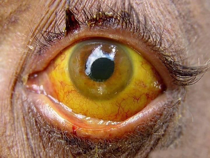 Симптомы желтые глаза и кожа. желтые склеры глаз: причины, лечение
