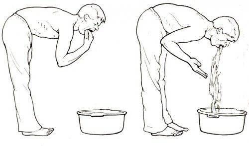 Как вызвать рвоту после еды в домашних условиях для похудения