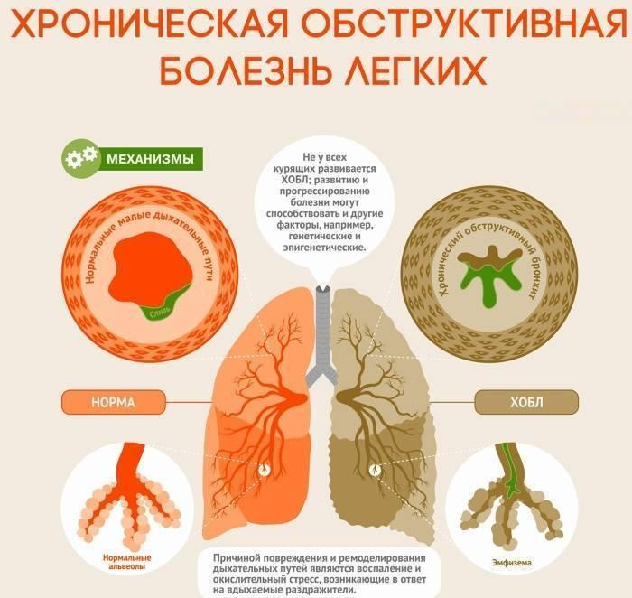 Хобл современное лечение: препараты при хронической болезни легких, симптомы и стадии хобл.