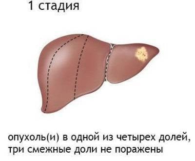Рак крови 3 стадии