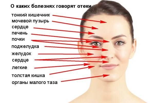 Как избавиться от опухшего лица. причины появления отеков лица