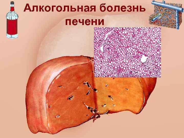 Алкогольный жировой гепатоз печени: симптомы