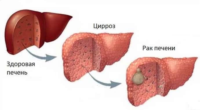 Цирроз и рак печени: в чем разница, отличия, сходства