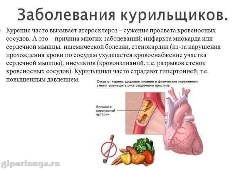 Какие алкогольные напитки можно употреблять при стенокардии?