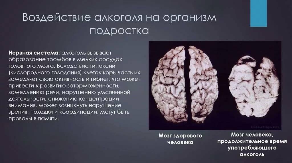 Разоблачаем мифы: алкоголь не убивает клетки мозга! Каковы же вред алкоголя и его польза?