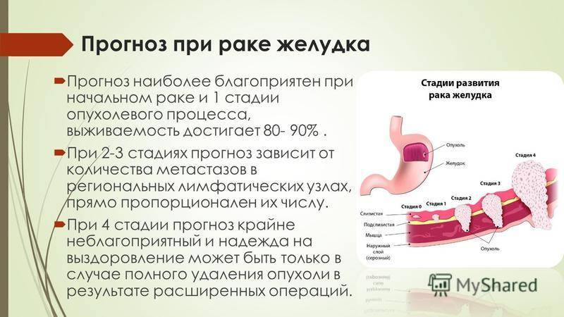 4 стадия рака: сколько живут, можно ли вылечить, распространение метастазов