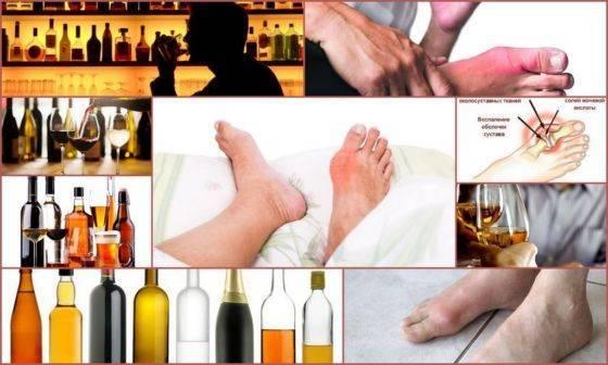 Алкоголь и подагра как совмещать? влияние и возможные последствия употребления спиртного, отзывы врачей