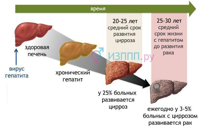 Заразен ли цирроз печени для окружающих или нет