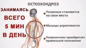 Шейный остеохондроз и алкоголь, влияние алкоголя на организм человека, почему алкоголь опасен при остеохондрозе, польза алкоголя при остеохондрозе: мифы и реальность,