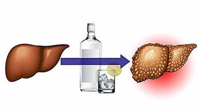 Как защитить печень при приеме алкоголя: нейтрализация воздействия на организм