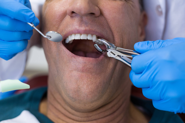 Можно ли курить после отбеливания зубов: чего нельзя делать? - я здоров