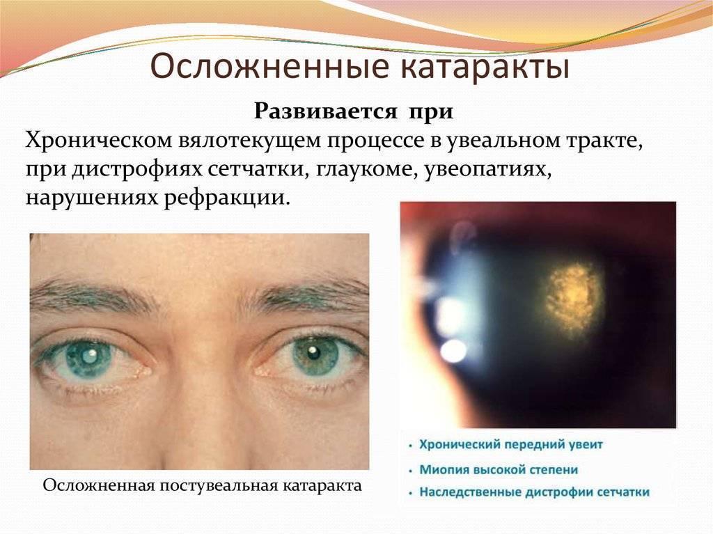 Катаракта глаза: симптомы и профилактика