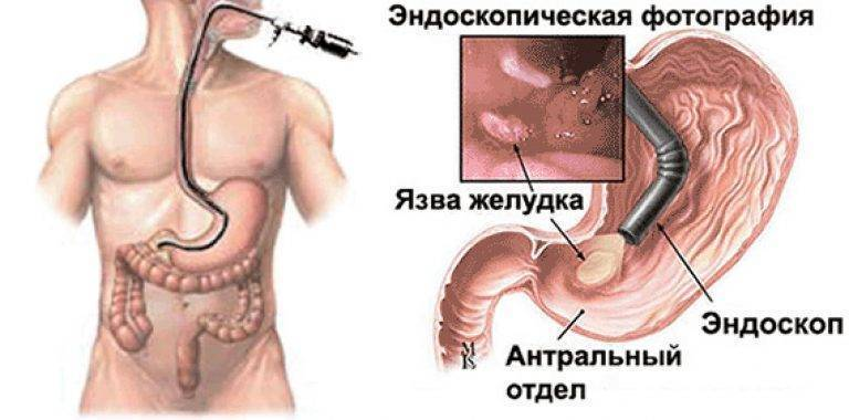Можно ли курить перед фгдс желудка?