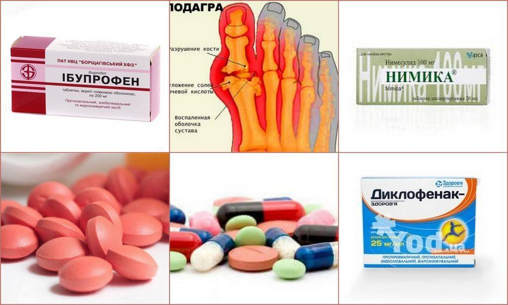 Подагра лечение медикаментозное колхицин