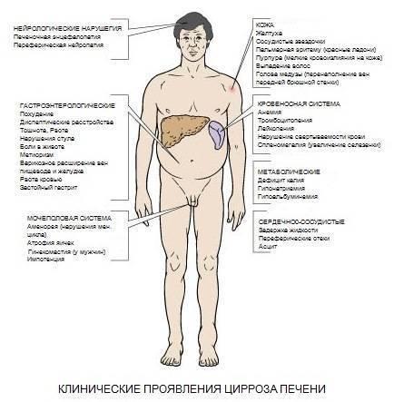 Звездочки на теле при циррозе печени фото