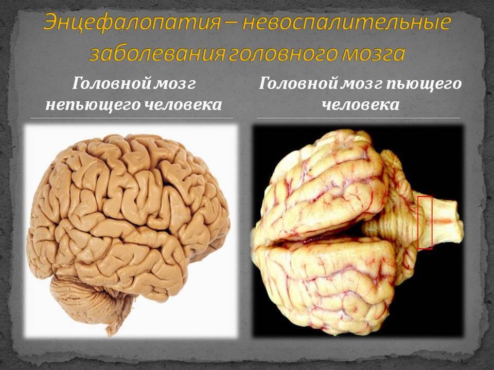 Причины отека мозга у пожилых - гипертоник
