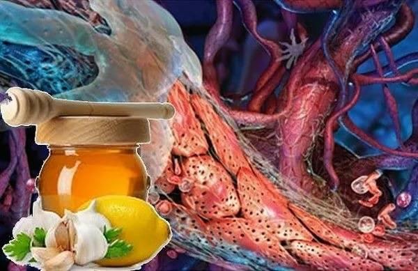Как лечить атеросклероз сосудов головного мозга народными средствами?