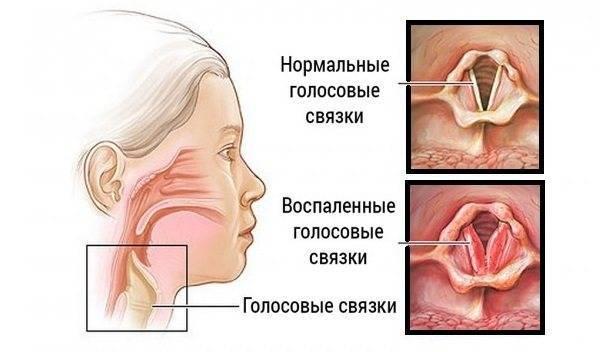 Курить кальян когда болит горло