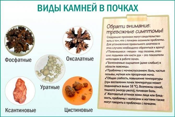 Камни в почках при алкоголизме — stranacom.ru