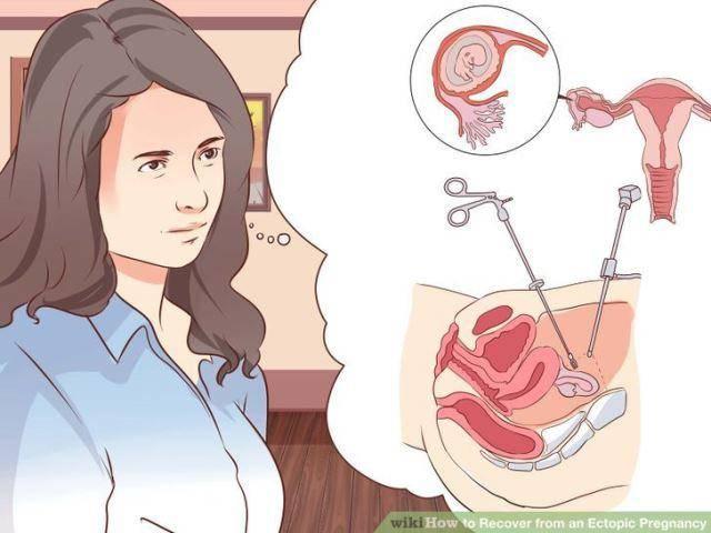 Употребление алкоголя после аборта и выкидыша