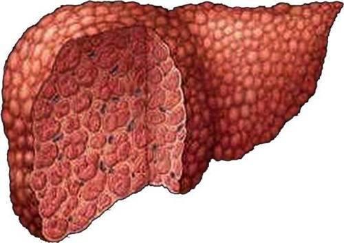 Цирроз печени и рак – это одно и то же или нет?