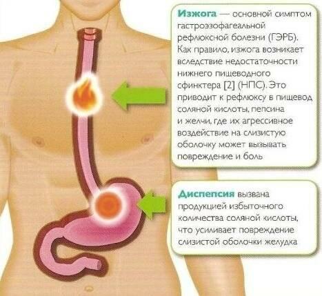 Причины жжения в желудке, лечение, отличия от изжоги