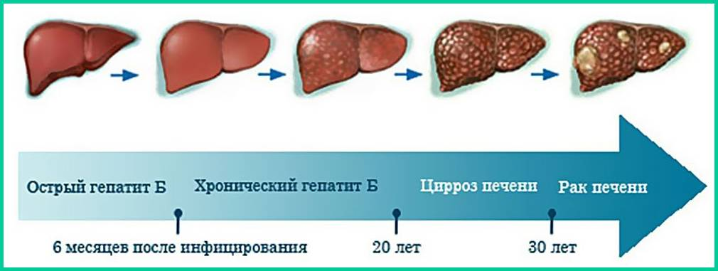 Осложнения цирроза печени: какие бывают и в чем их опасность