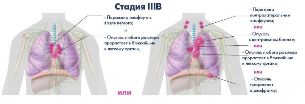 Рак крови 3 стадия: симптомы, прогноз и лечение