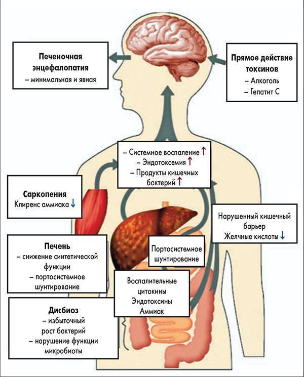 Алкогольные энцефалопатии, острая и хроническая симптомы и лечение