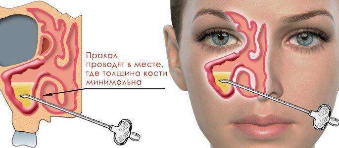 Курение при гайморите и самые опасные осложнения