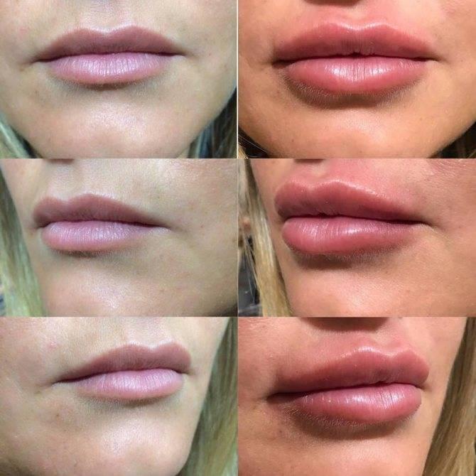 Можно ли пить алкоголь после увеличения губ гиалуроновой кислотой, курить, сколько нельзя заниматься спортом, пить горячее, целоваться