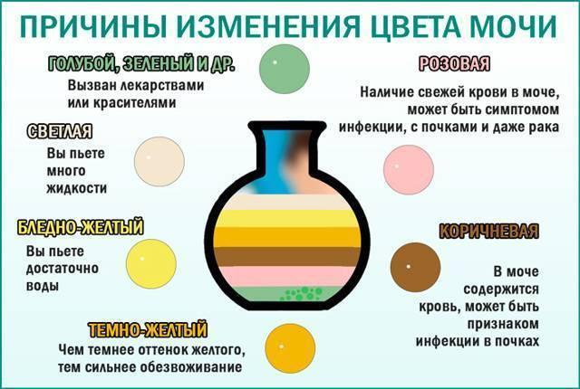 Темная моча после алкоголя - wikinefrologiya.ru