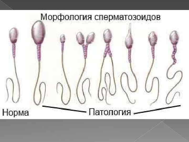 Влияет ли алкоголь на сперму – научные данные