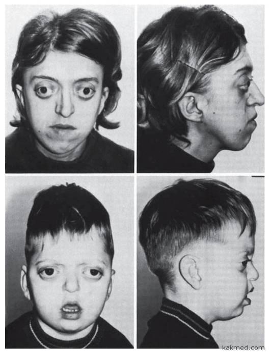 Синдром алкоголика у детей фото