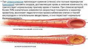 Влияние водки на расширение или сужение сосудов