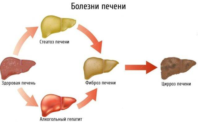 Алкогольная болезнь печени: сипптомы, классификация, лечение