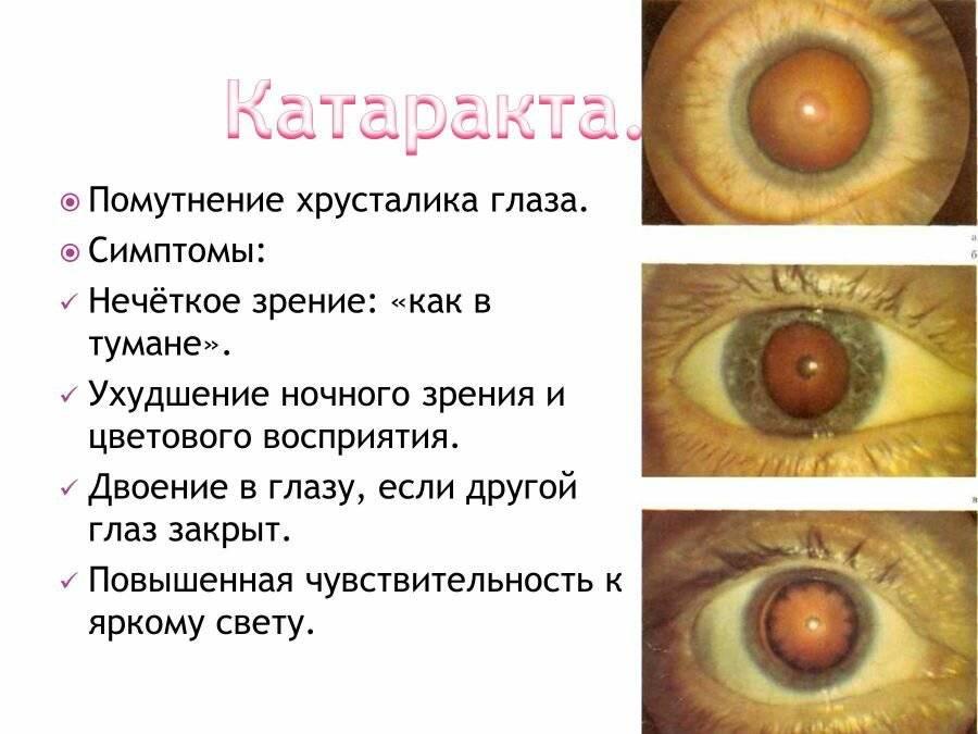Катаракта. причины, симптомы, лечение и профилактика