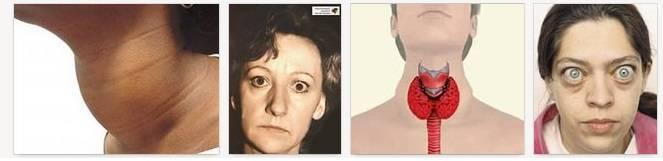 Как курение и никотин влияют на щитовидную железу?