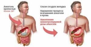 Причины и лечение болей в желудке после алкоголя