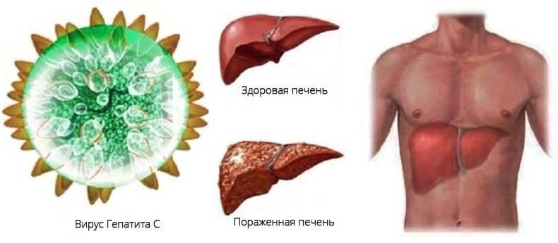 Как передаётся цирроз печени