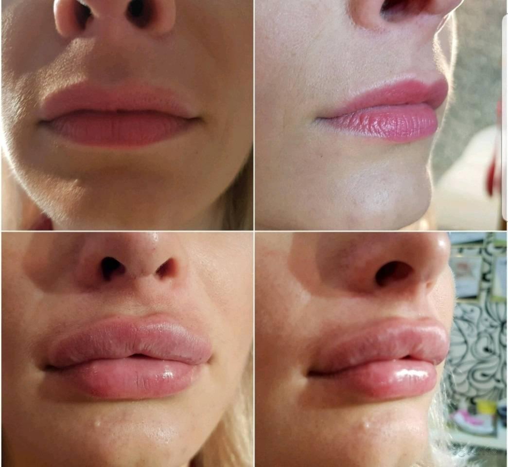 Что нельзя делать после увеличения губ гиалуроновой кислотой, как правильно ухаживать