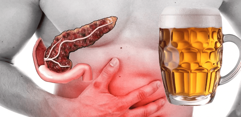 Что можно пить из алкоголя при камнях в желчном пузыре