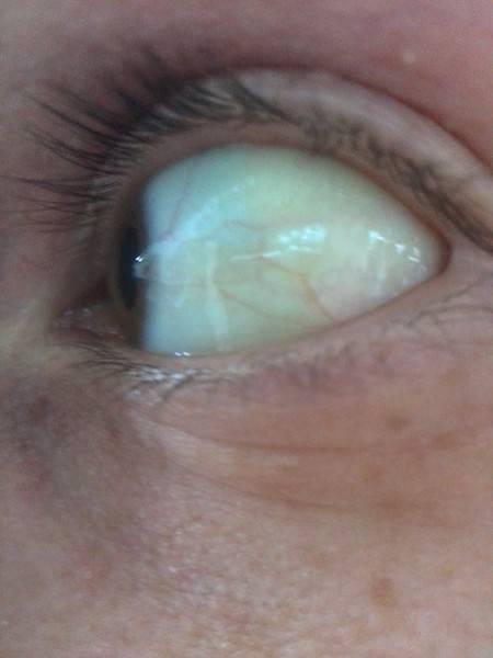 Пожелтели глаза и кожа причины лечение - умный доктор