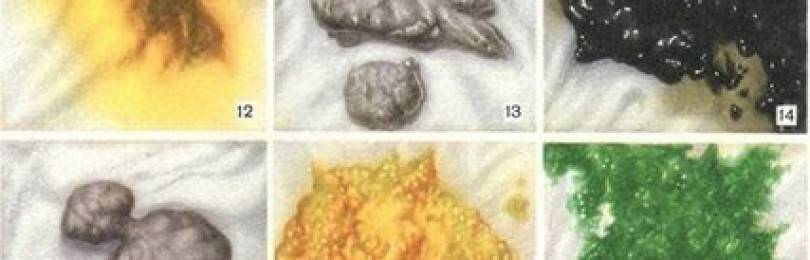 Цвет кала при гепатите