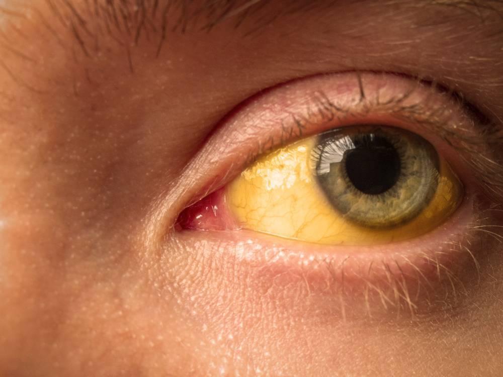 Желтые белки глаз: причины у взрослого и новорожденного, лечение, диагностика, профилактика, механизм появления желтизны