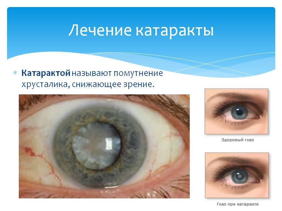 Причины, виды и особенности катаракты. профилактика и борьба