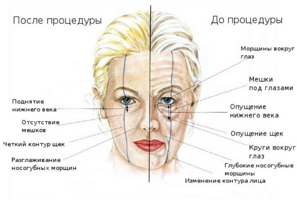 Что нельзя делать после филлеров в косметологии и можно ли их колоть во время месячных или при беременности?