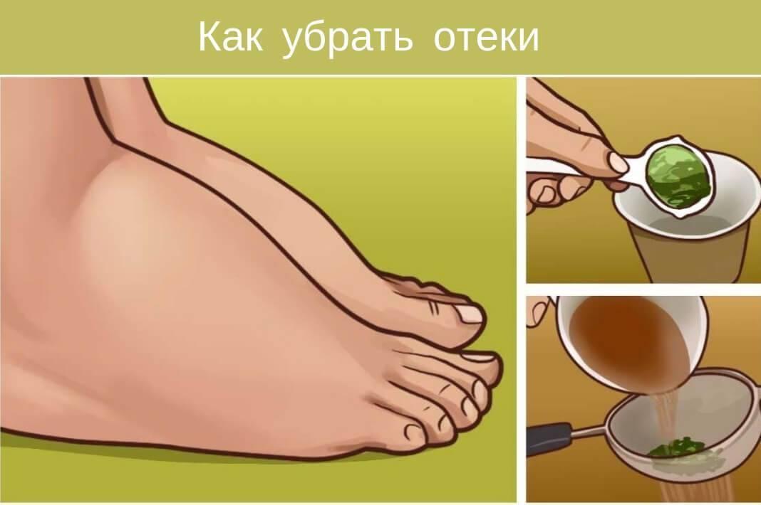 Отекают ноги – причины и лечение – как снять отек ног народными средствами