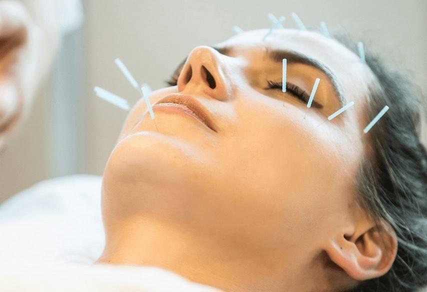 Иглоукалывание: польза и вред, лечение, противопоказания, эффект, отзывы