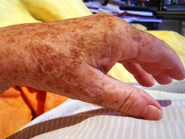 Зуд кожи при заболеваниях печени: лечение, причины, симптомы кожного зуда, сыпи и жжения